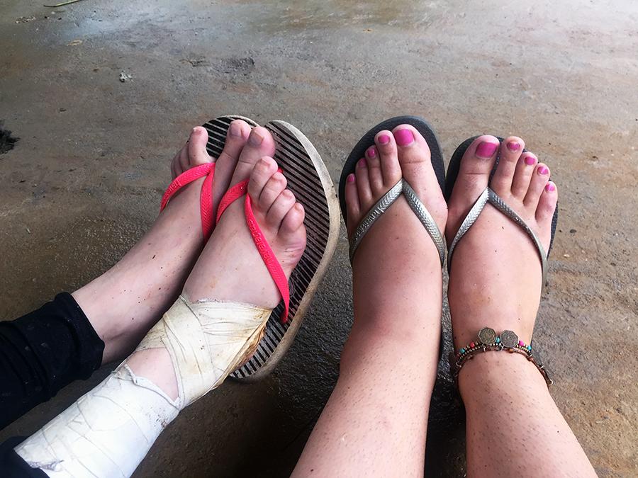 Sprained Ankles in Sapa www.taylorstracks.com